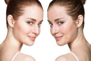 Mcyıll Güzellik'te 2 Seans Akne, Leke, Kırışıklık ve Cilt Yenileme Tedavisi