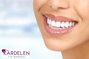 Özel Kardelen Tıp Merkezi'nden Gülüşlerinizi Aydınlatacak Diş Taşı Temizliği ve Diş Parlatma Uygulaması